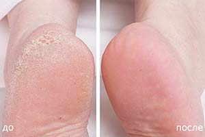 Крем тинедол до и после применения