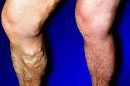 Вариус спсобен вылечить варикоз без операций