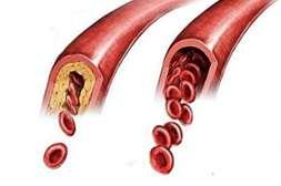 Капсулы Normalit Activ растворяют холестериновые бляшки.
