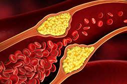 Снижает холестирин препарат Диабетик Форте.