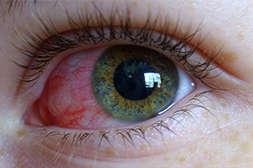 Состав Oculusan обладает противовоспалительным действием.