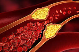 Польза Lactovita в предотвращении образования холестериновых бляшек.